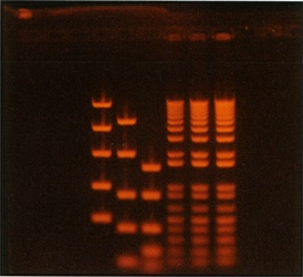 DNA Gel on Transilluminator (28,448 bytes)