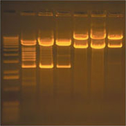DNA Ethidium Bromide stained Gel on Transilluminator (28,448 bytes)